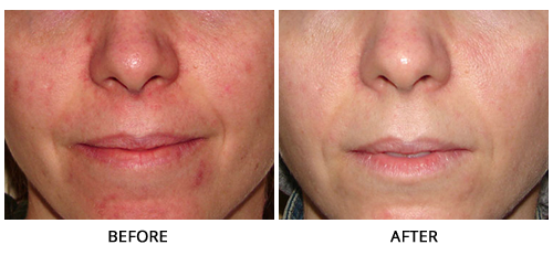 Ipl Photofacial In Los Angeles  Dmh Aesthetics Medical Group. Teaching Jobs In Southern California. Real Time Stock Data Api Challenger The Eagle. Supply Chain Management Certification Courses. Cash Rewards Credit Cards Navy Federal. Best Places To Sell Cars Online. Facilities Management Certificate. What Is An Engineer Salary The Doctors Group. Epa Whistleblower Reward Social Media Pricing